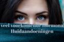 hormonale huidaandoeningen